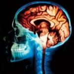 Tel Aviv University Researcher Implants Robotic Cerebellum